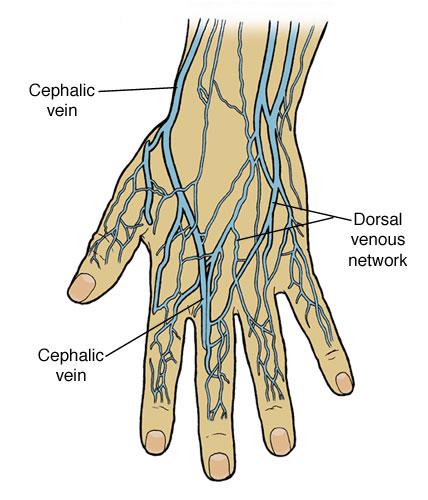 varicose veins of the hands | treatment of varicose veins hands, Cephalic Vein
