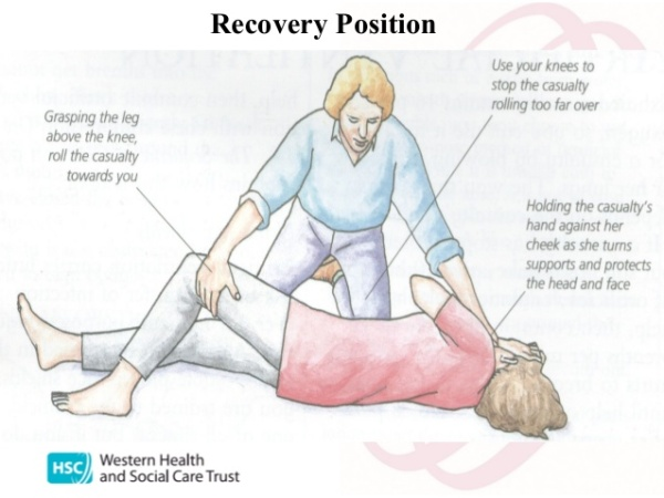 Pic 1: The recovery position; an essential after seizure position to prevent choking and allow good respiration.